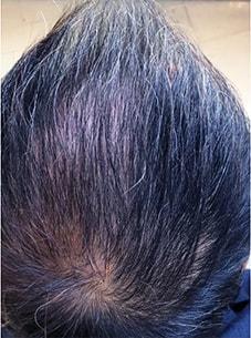 治療を始めて2ヶ月後の頭皮