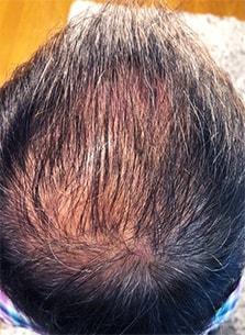 治療前の頭皮